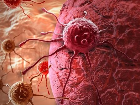 Bệnh ung thư: Vì sao chưa có thuốc giải?