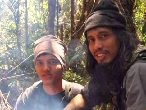 trum khung bo indonesia santoso (phai) voi not ruoi dac trung tren tran. nguon: news.com.au